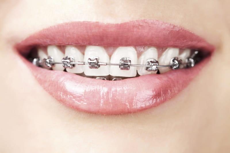 Dịch vụ niềng răng