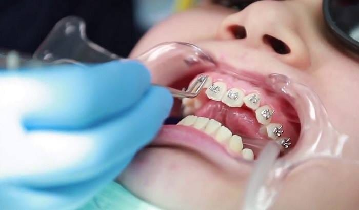 Nha khoa Yteeth