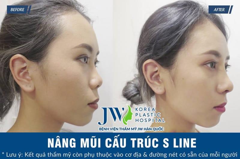 Bệnh viện phẫu thuật thẩm mỹ JW Hàn Quốc