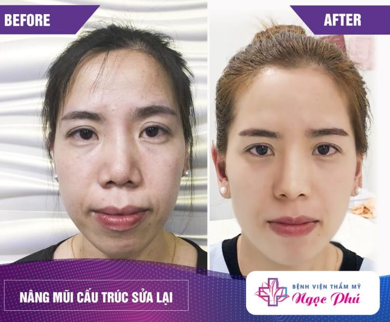 Bệnh viện phẫu thuật thẩm mỹ Ngọc Phú